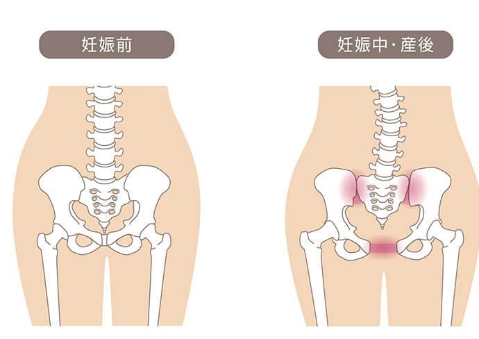 産前産後の骨盤の比較画像